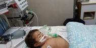 وفاة الطفل يوسف الأغا بمستشفى الرنتيسي بعد انتظار 17 يومًا