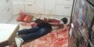 الاحتلال ينقل الأسير الجريح عمر العبد لأقبية التحقيق بالشاباك