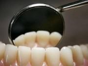 8 نصائح ذهبية.. كيف تحمي أسنانك من التسوس؟