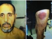 عائلة الأسير حناتشة: صور التعذيب ستُرفع للجنايات الدولية لأنها جريمة
